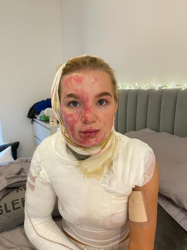 Abbie Quinnen after third degree burnt